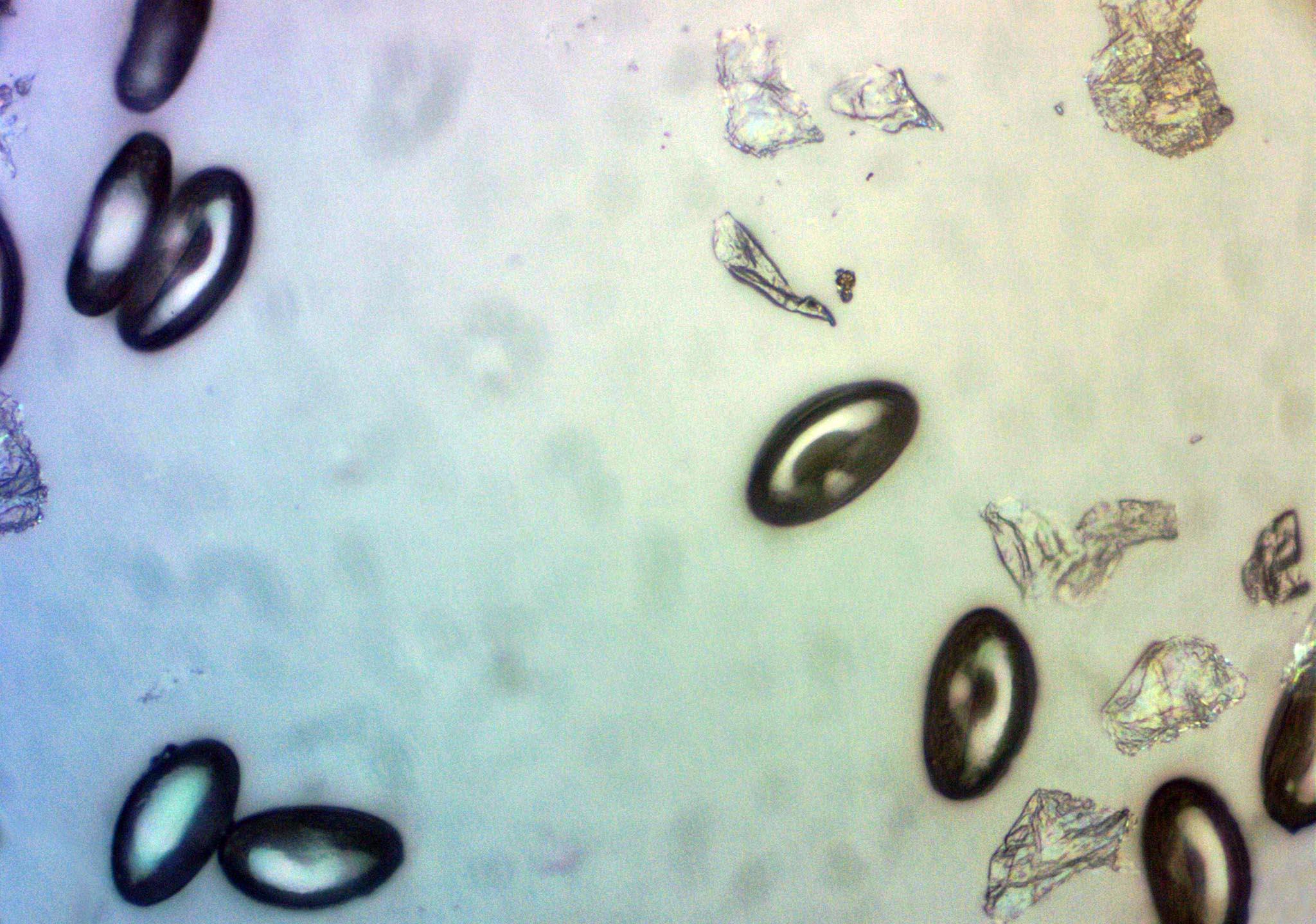 van e hőmérséklet pinwormokkal hogyan kezelik a parazitákat az USA ban