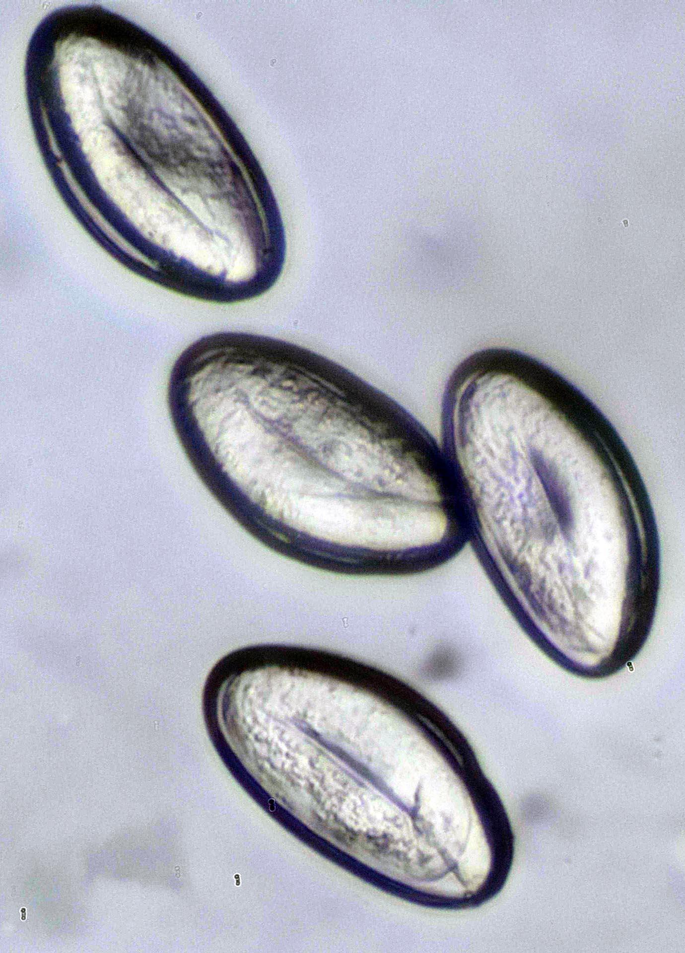 van e hőmérséklet pinwormokkal galandféreg jelenlétének jelei az emberi testben